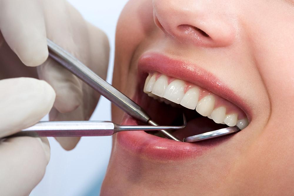 典雅牙醫人工植牙