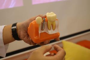 什麼人適合做植牙? 植牙成功率達九成