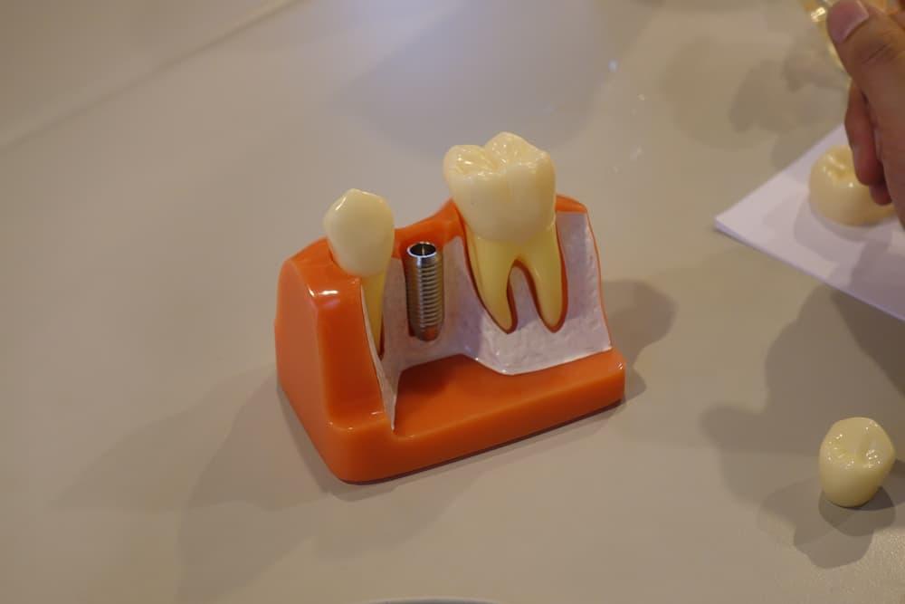 拔牙後多久植牙最安全?拔牙後不植牙可能會面臨什麼事?