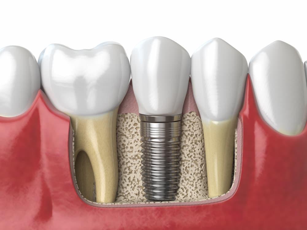 植牙材質有分哪幾種?植牙材質會影響品質嗎?